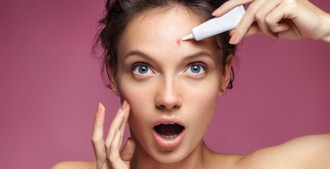 Todo lo que una persona con acné debe saber